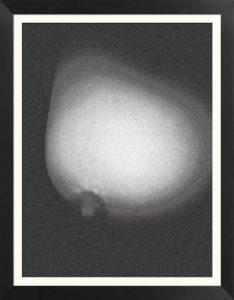 uno breast 2